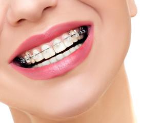 temp_ortodontie